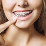 גשר בשיניים – כל הדברים שצריך לדעת לפני גשר בשיניים