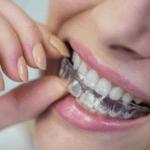 האם יש דרך ליישר שיניים ללא גשר