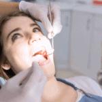 כתר לשיניים – סוגים